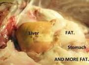 fatty liver1